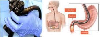 Gastritis crónica o aguda 2