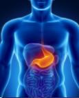 Gastritis crónica o aguda