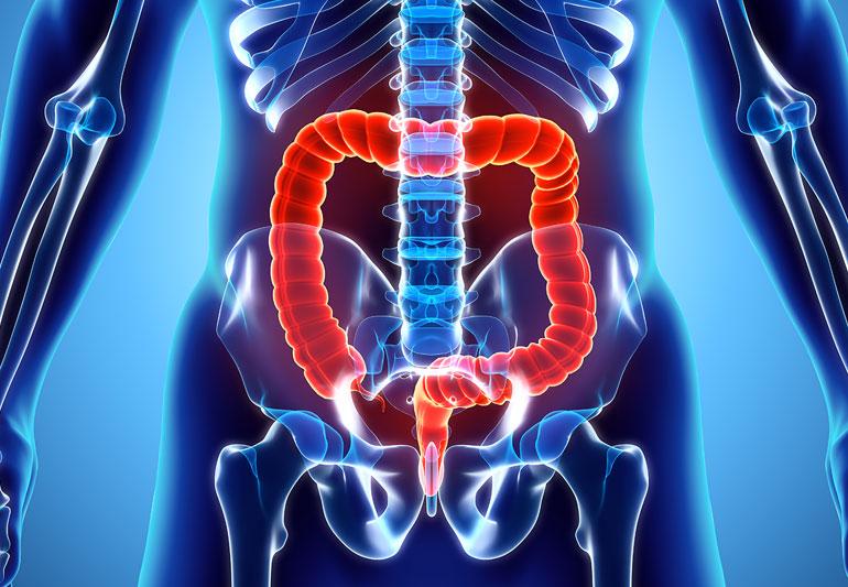 Especialista en cáncer de colon en CDMX